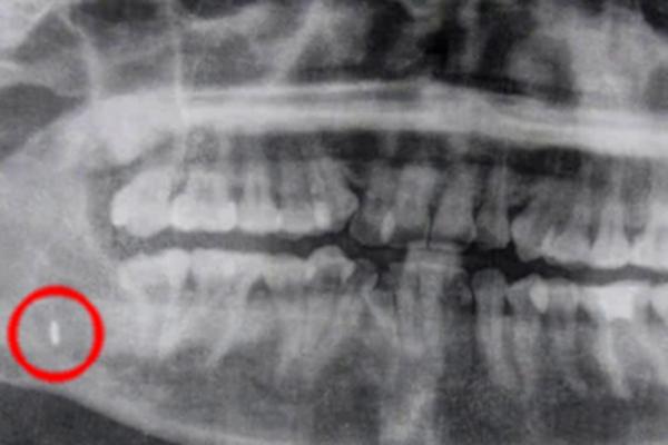 В Таиланде врачи извлекли из челюсти пациентки забытый инструмент