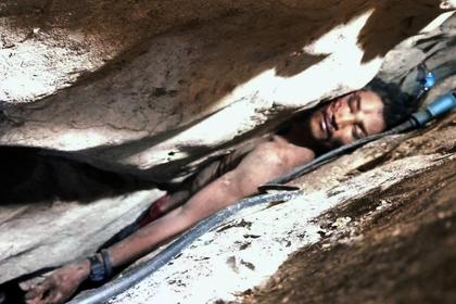 Придавленный камнями фермер выживал без воды и еды четыре дня