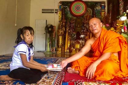 Из-за редкой болезни девочка из Камбоджи похожа на пожилую женщину