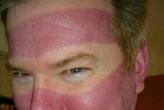Наглядное напоминание об опасности солнца